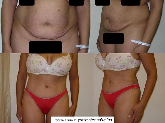 לפני ואחרי ניתוח מתיחת בטן