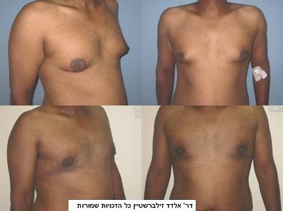 לפני ואחרי ניתוח גניקומסטיקה - הקטנת שדיים לגבר