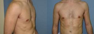 הגדלת שרירים פקטורלים חזה לגבר