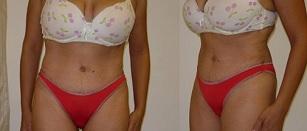תמונות לפני ואחרי הטיפולים