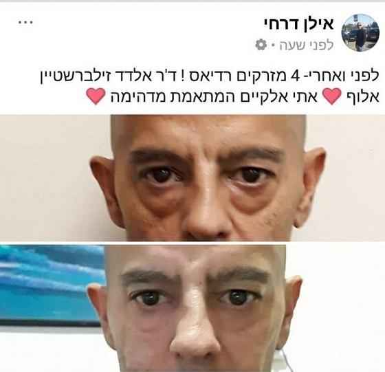 לפני ואחרי הזרקת רדיאס