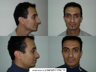 לפני ואחרי ניתוח ניתוח אף
